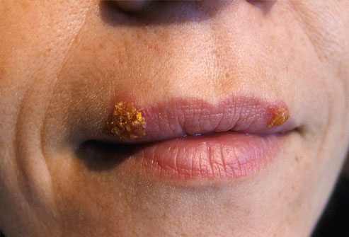blisters for herpes cold sore